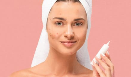 Best Anti-Aging Cream for Acne Prone Skin