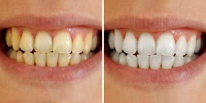 before and after using a whitening product